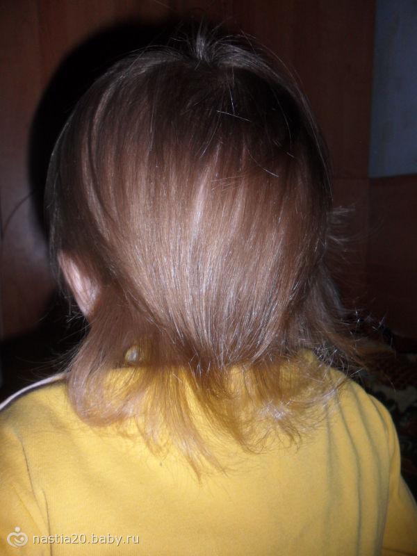 Волосы не растут