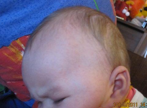 У ребенка высыпания на лице фото и названия