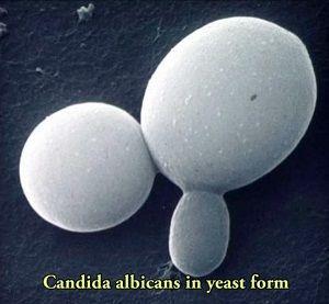 Бактериальный вагиноз при беременности. Какой он?