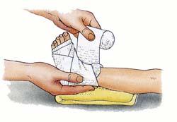 Реферат доклад растяжение мышц суставов лечение разрыва связок голеностопного сустава мазь