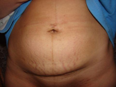 Беременность после года после кесарева