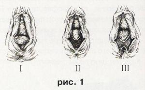Операция по расширению входа во влагалище