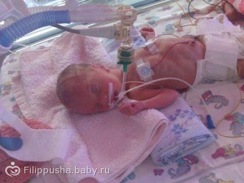 Ребенок родился на 31 неделе беременности фото