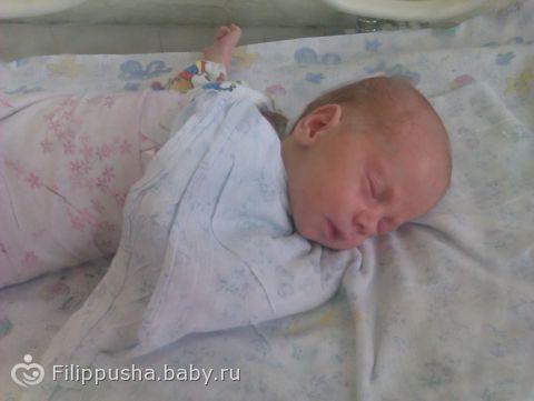 шелушение кожи на руках и ногах у ребенка фото с пояснениями
