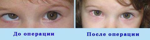 Лечебные сеансы восстановления зрения