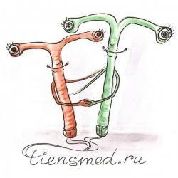 Спираль как метод контрацепции