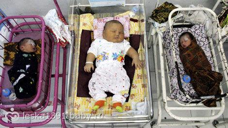 Самый крупный ребёнок при рождении фото